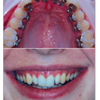 Invisible Braces- We offer a complete range of options