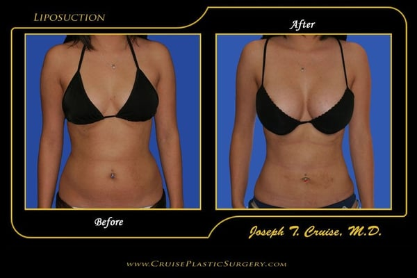 Liposuction Of Abdomen Before And After Yelp
