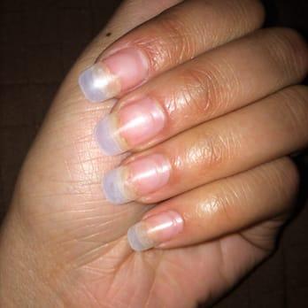 Fingernail Lifting ~ Onycholysis | Health Boundaries
