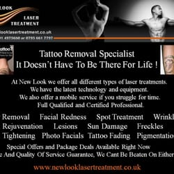 New Look Laser Treatment, South Shields, Tyne and Wear