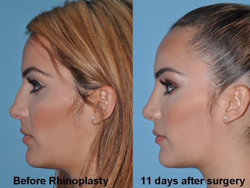 how to become plastic surgeon in usa