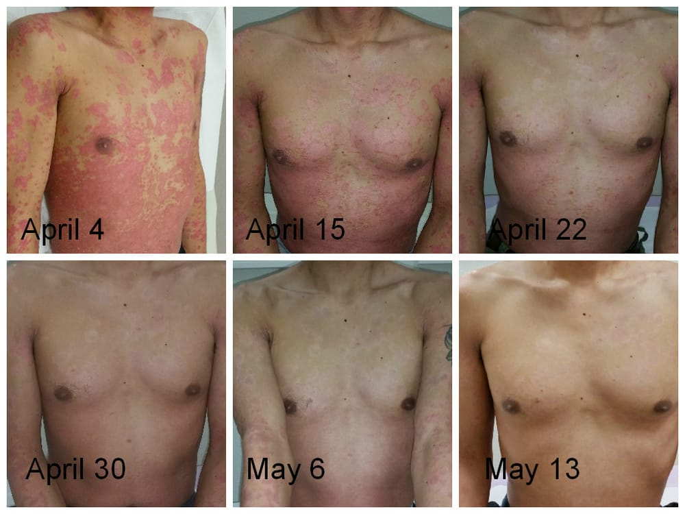East Bay Psoriasis Treatment Center this can impairment/nephropathy includes nephritis 3
