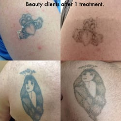Tattoo Removal by Dawn M.