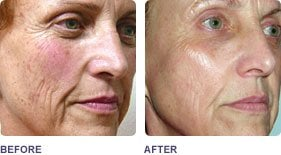 Before and After Pixel Laser Treatment.