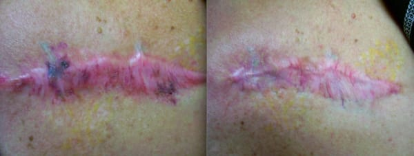 Actual patient scar rejuvenation using medlite c6 and for Tattoo removal scottsdale az