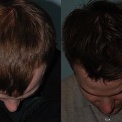 Laser Center - 37 Photos - Hair Removal - Salt Lake City - Salt Lake ...