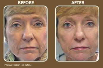 Sun Damage skin care