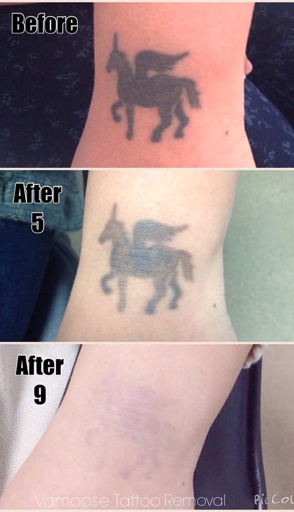 Vamoose tattoo removal tattoo removal bucktown for Tattoo laser removal near me