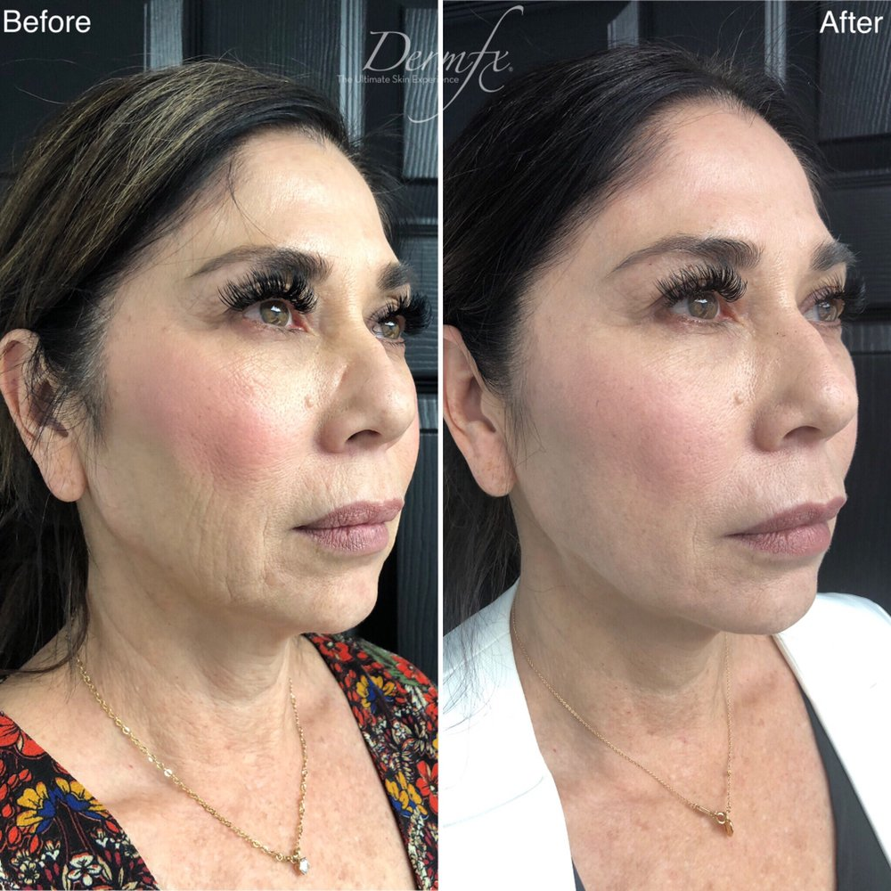 Lower Face Lift using EuroThreads! - Yelp