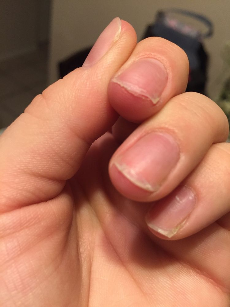 Why do your nails need to be this short to apply acrylic? My nail ...