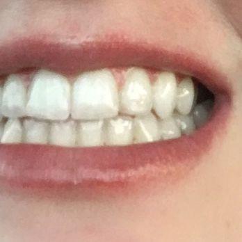Waterloo Tan Closed 10 Photos 15 Reviews Teeth Whitening