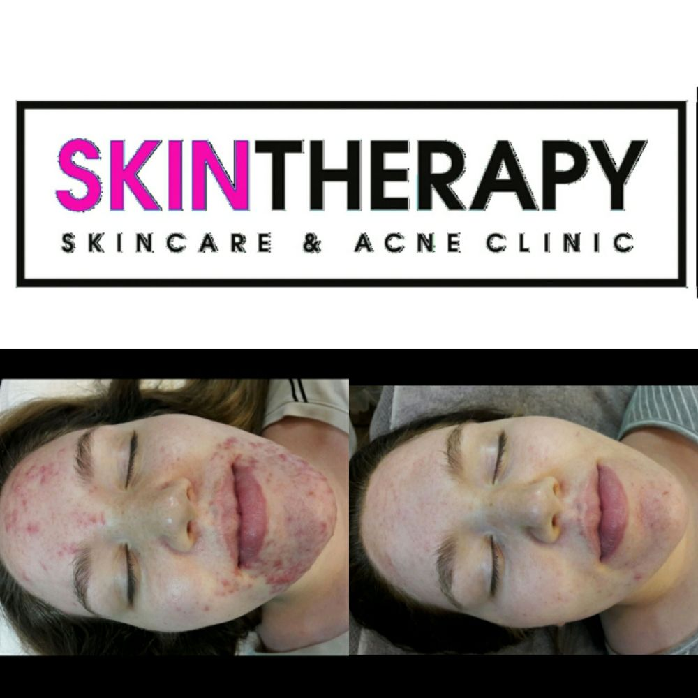 Skintherapy Skincare & Acne Clinic: 1345 E 3900 S, Salt Lake City, UT