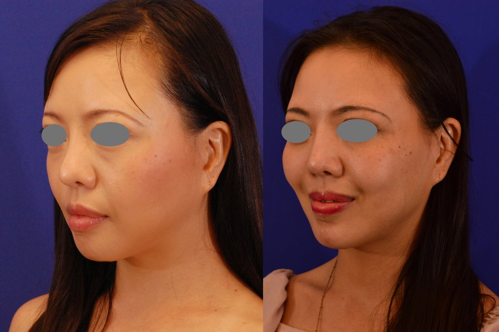 Revision rhinoplasty with repositioniong / revision of chin