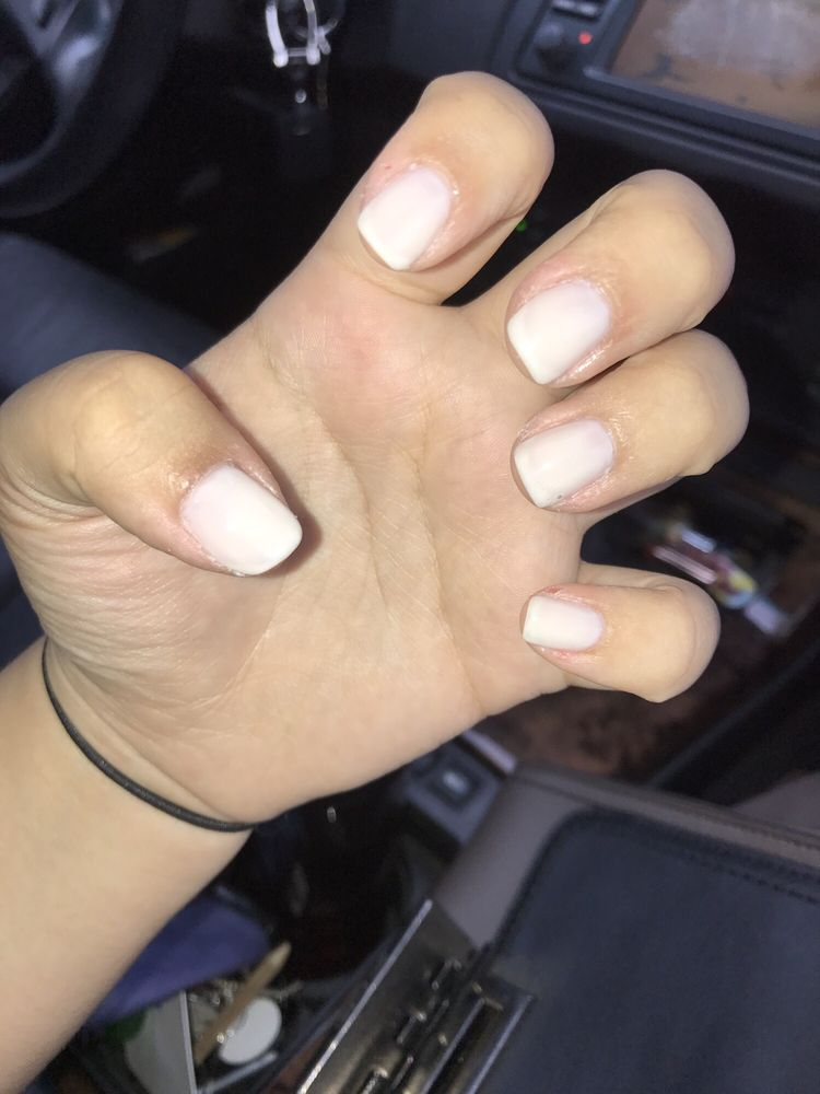 her cuticles were bleeding, there was dead skin not cut, her nails ...