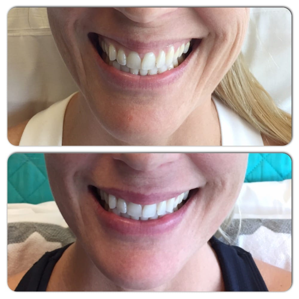 Amazing Results With Belotero For Diminishing Smile Lines