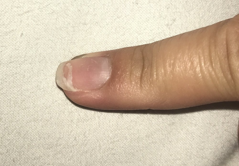 My nail that Kathy hurt and ruined badly is shown here. - Yelp