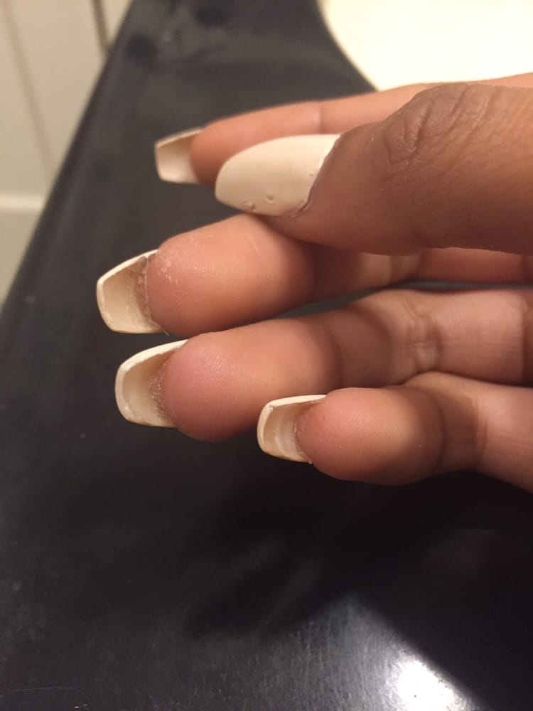 Sloppy acrylic refill done by sunny. Failed to clean up the ...