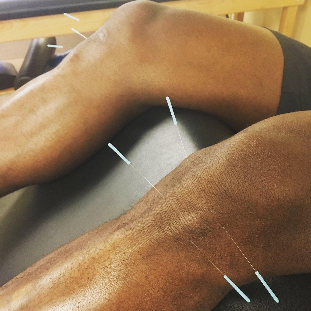 Dry Needling To Patellar Tendon Insertion Yelp