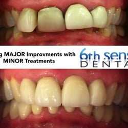 6th Sense Dental 10 Photos Cosmetic Dentists 28901