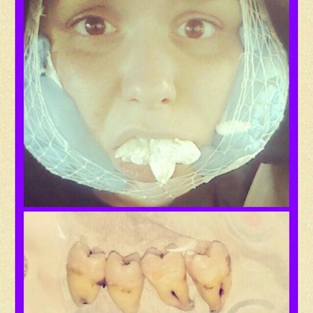 Rocklin Oral Surgery