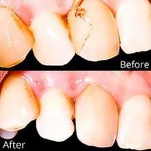 Excelsior Dental Care: 7814 Excelsior Rd, Baxter, MN