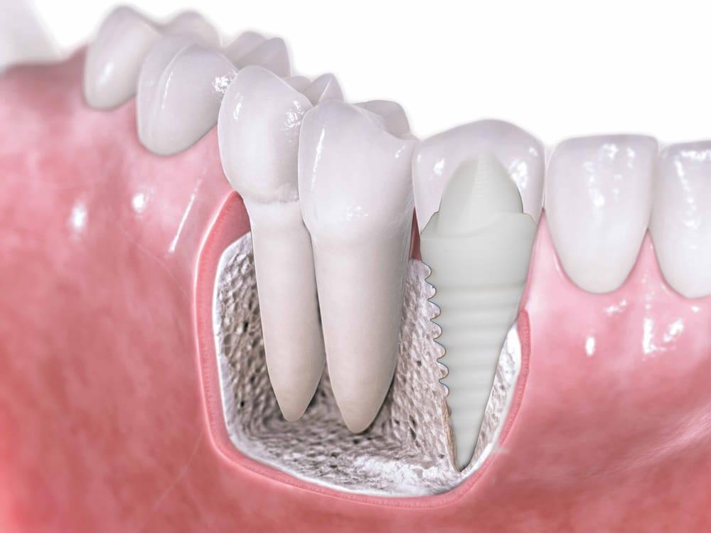 Ceraroot Zirconia Implants Holistic Dentistry Yelp