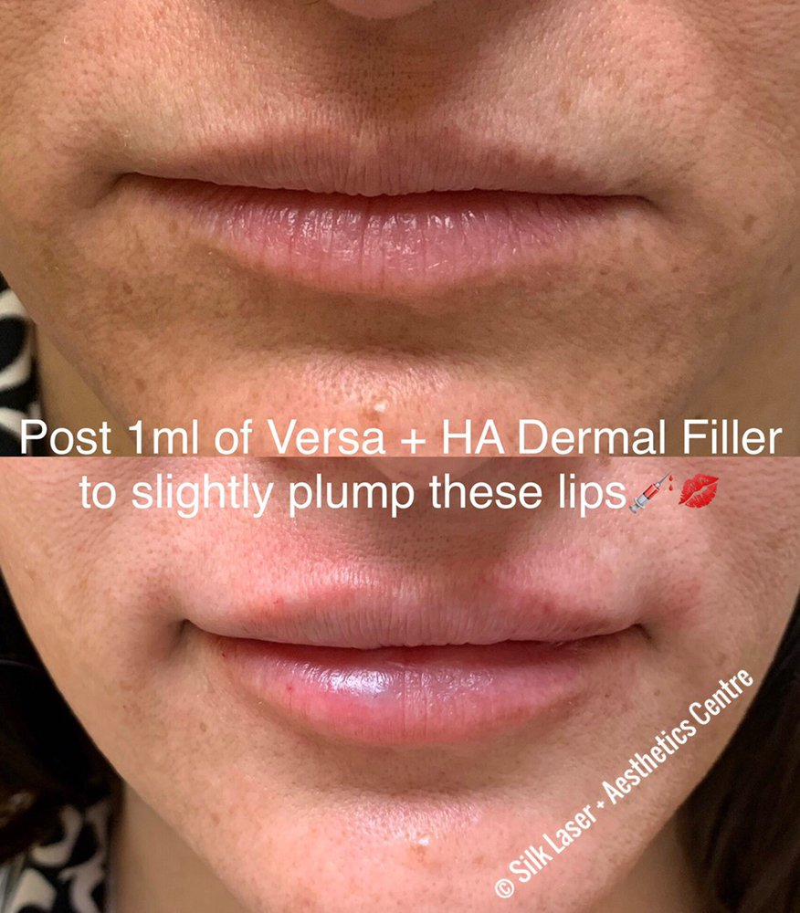 Versa Dermal Filler Lip Injection - Yelp