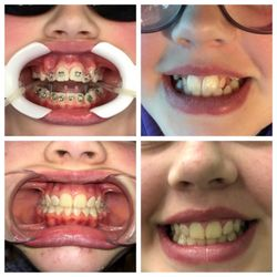 Comfort Dental Braces - Orthodontists - 31401 Pacific Hwy S