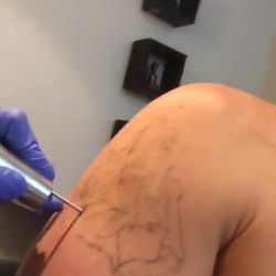 Vanish-Ink Laser Tattoo Removal - 22 Reviews - Tattoo Removal - 1315 ...