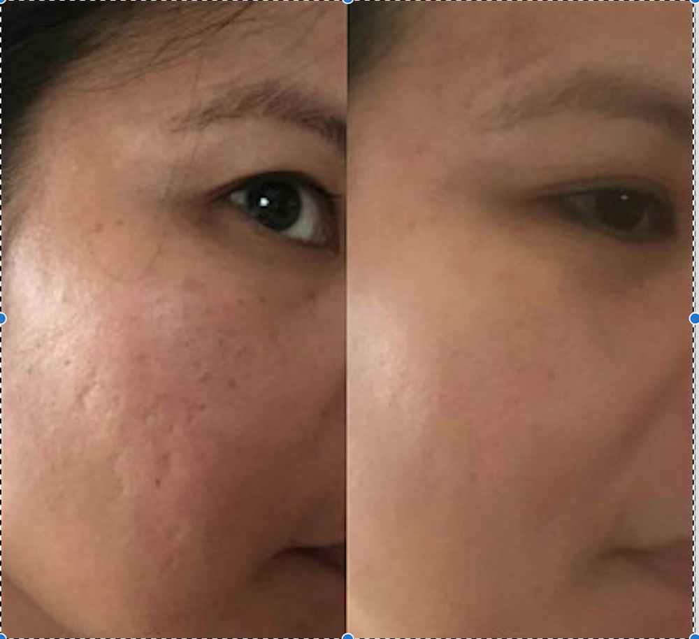 Before and after  Acne scars  Micro needling, with the