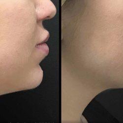 Khrom Dermatology and Aesthetics - (New) 23 Photos & 28