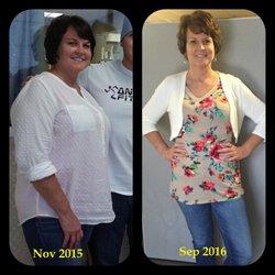 Weight loss surgery richland wa