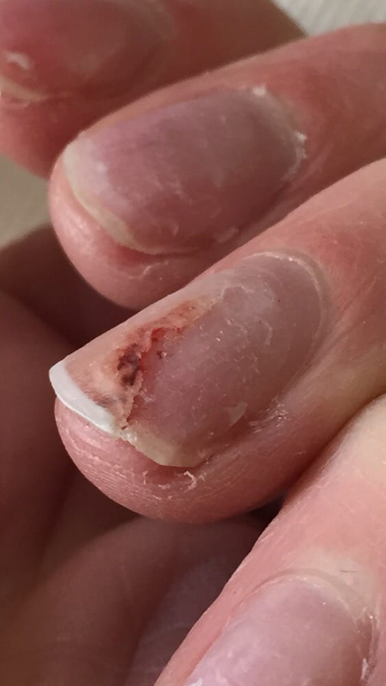 My nails after removal. Cracked down into nail bed and still not ...
