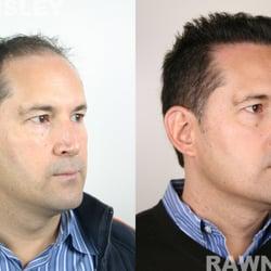 Rawnsley Hair Restoration - 20 Photos & 12 Reviews - Hair Loss