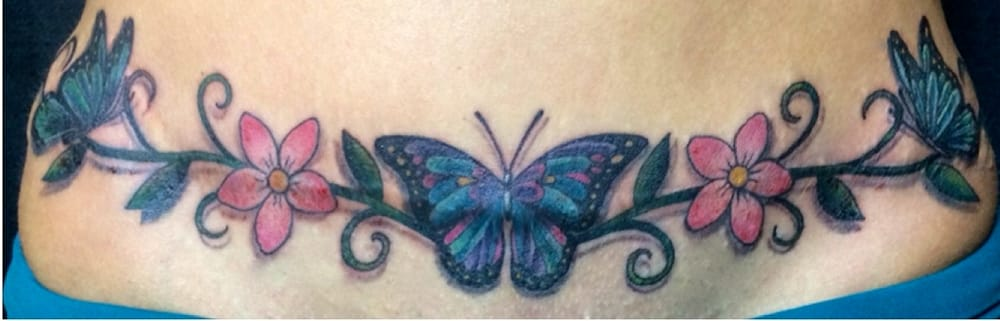 Tattoo over tummy tuck scar yelp for Tattoo over tummy tuck scar
