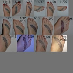 Project erase tattoo removal tattoo removal 1719 w for How long is a tattoo removal session