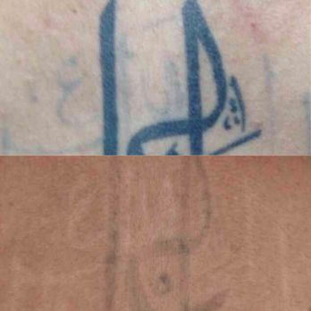 Absolute Laser Tattoo Removal - 63 Photos & 30 Reviews - Tattoo ...