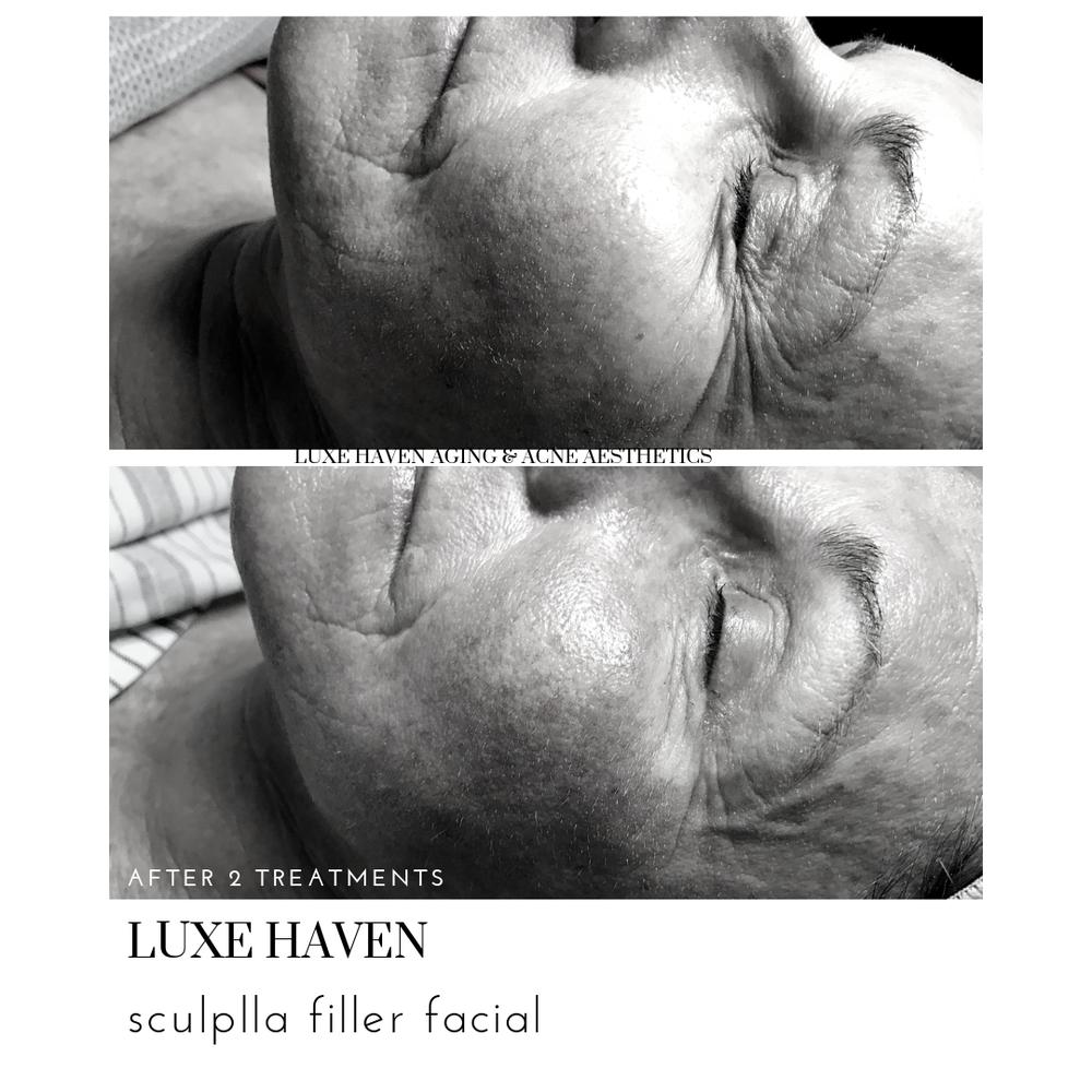 Luxe Haven Aging & Acne Aesthetics
