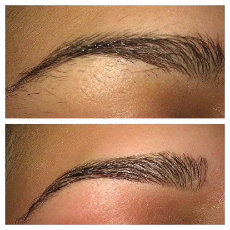Electrolysis Can Perfectly Shape And Arch Your Eyebrows To Last