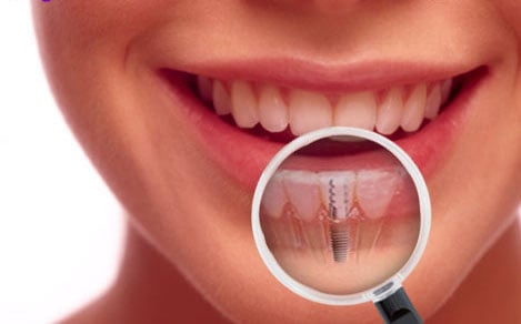 Joseph Goth, MD, DMD - Oral Surgery & Dental Implant Center: 980 Beaver Grade Rd, Moon Township, PA