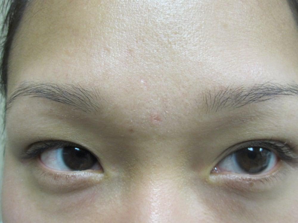 Sebaceous Hyperplasia Post Treatment - Yelp