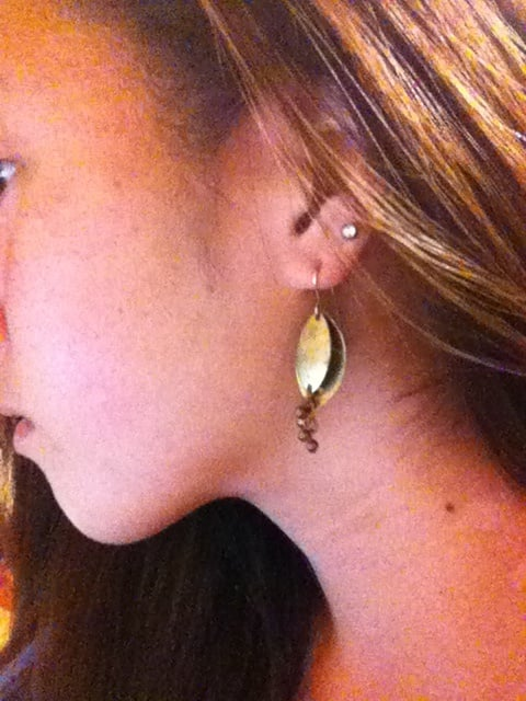 Reopening My Closed Second Lobe No Scar Or Blood Or Irritation Yelp