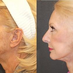 Philadelphia facial cosmetic surgery