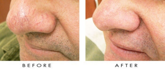 Accept. facial spider veins seattle