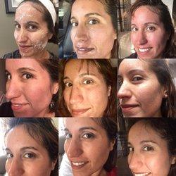 Boulder facial surgery