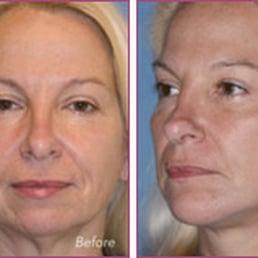 Facial surgery center cincinnati ohio