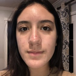 Top 10 Best Facials With Pore Extraction In Fullerton Ca Last Updated July 2019 Yelp
