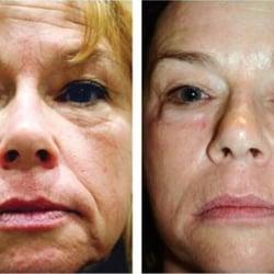 California facial rejuvenation