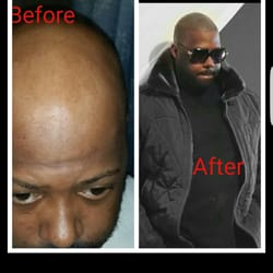 hair loss Baltimore