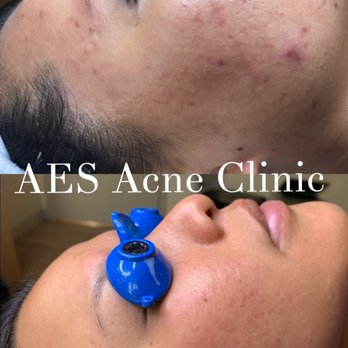 AES Acne Clinic - 222 Columbus Ave, Chinatown, San Francisco